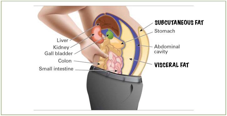 Subcutaneous vs. visceral fat